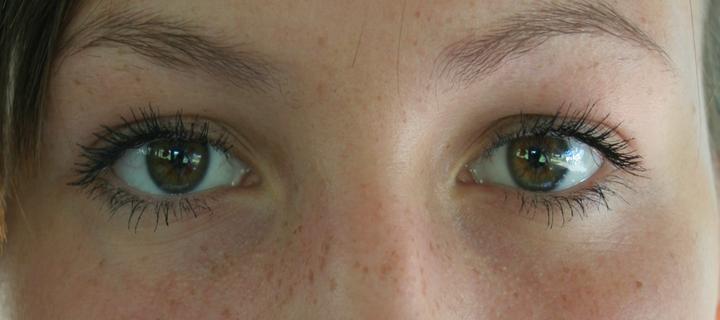 Възможно ли е преработване на емоционалната травма с движения на очите